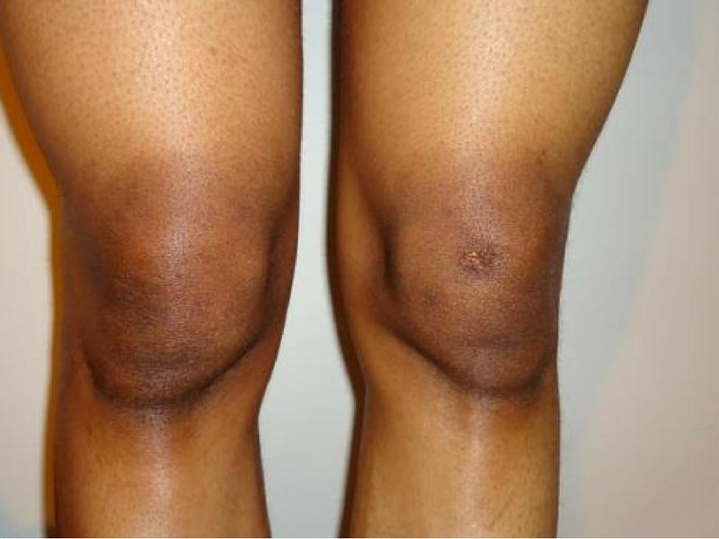 Harap Je Muka Putih Tapi Siku & Lutut Hitam? Cuba 5 Cara Natural Atasinya